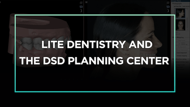Lite Dentistry and the DSD Planning C...