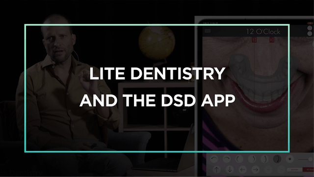 Lite Dentistry and the DSDApp