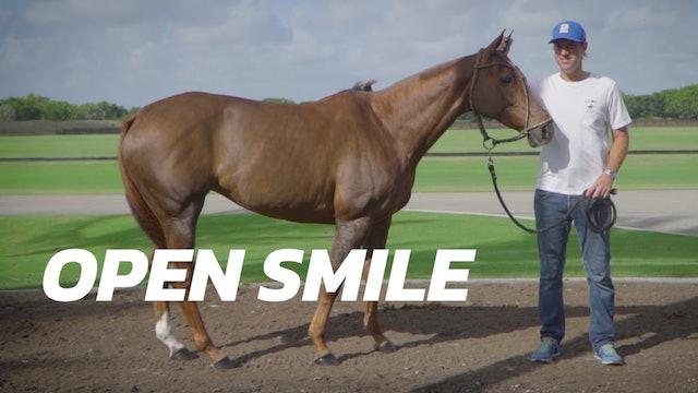 Open Smile - Gonzalito Pieres