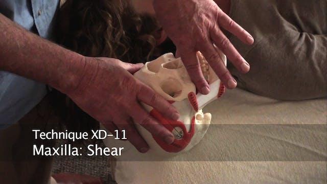 Headaches X. Supplemental Techniques ...