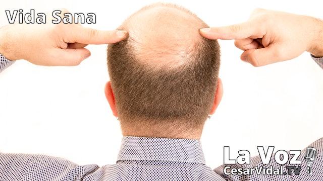 La caída del pelo (3) - 07/10/20