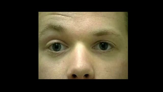 BVA-011-Congenital partial right ptosis and right microesotropia