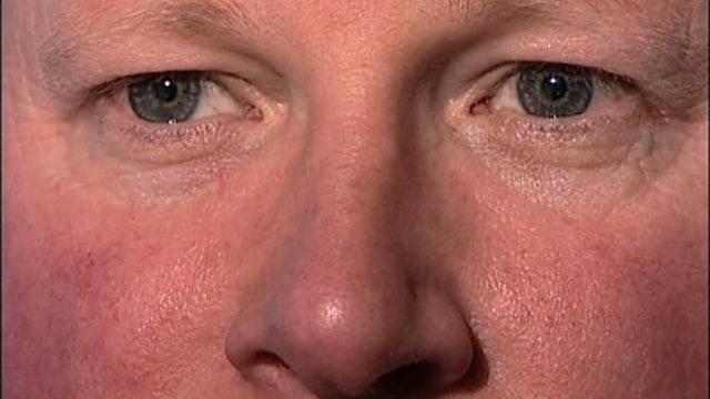 PRE003 Hirschberg corneal reflexes - assess binocular fixation with pen light