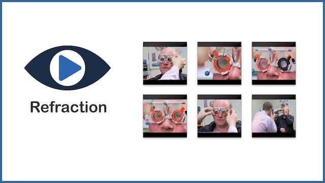 Refraction procedures