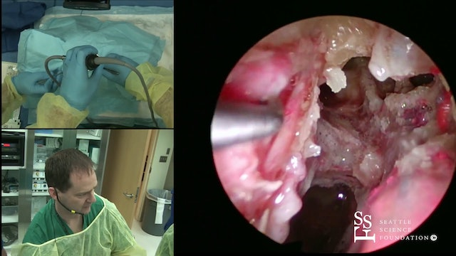 Orbital & Optic Nerve Decompression, Endoscopic DCR Demonstration