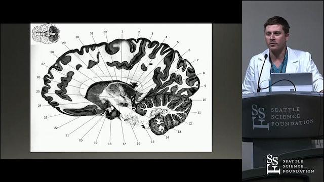 MRI Guided Focused Ultrasound in Neurosurgery