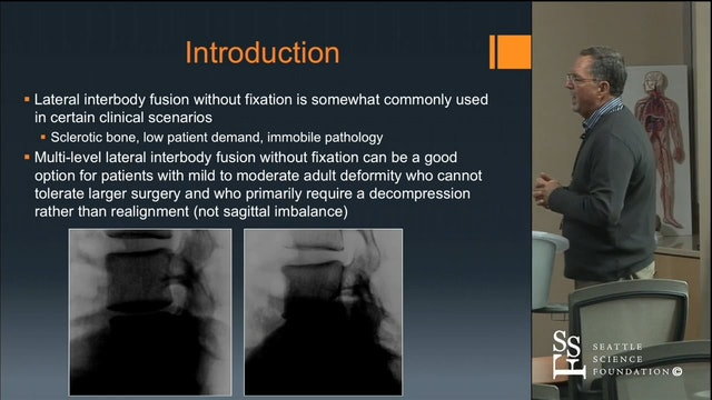 Lateral Approach to the Multi-Level Stand Alone Fusions