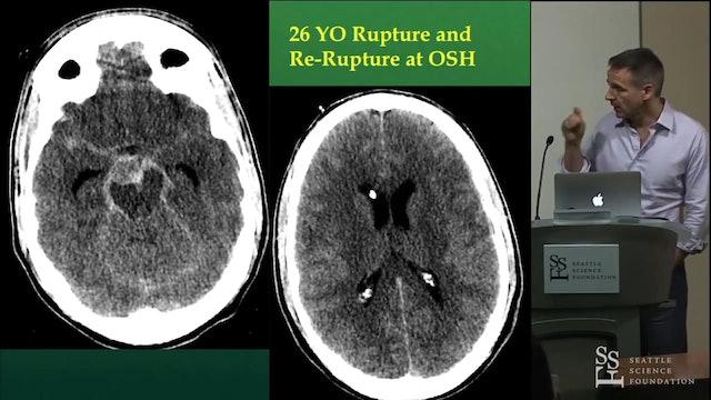 Distal basilar trunk and apex aneurysm