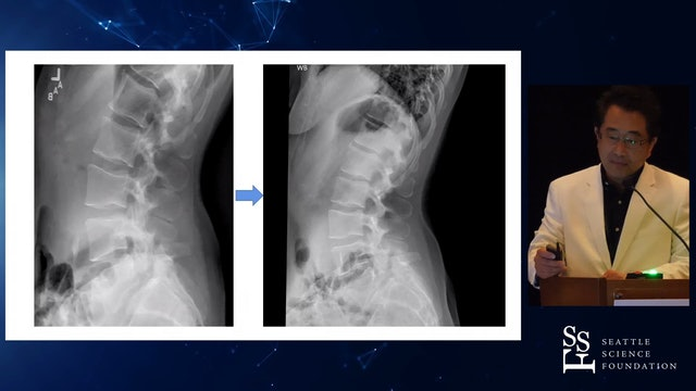 Surgical Treatment of Isthmic Spondylolisth with Single Position MIS