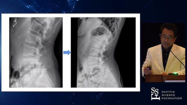 Surgical Treatment of Isthmic Spondyl...