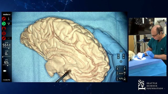 Practical Anatomy of the Brain: Sulci...