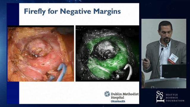 Avoiding Positive Margins During Robotic Partial Nephrectomy