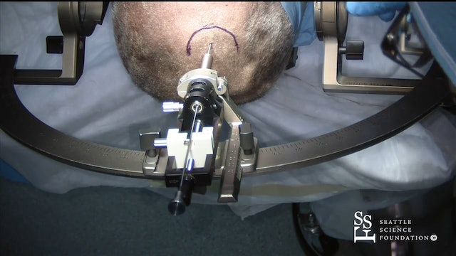 Asleep DBS with Leskell Frame & Intra-Op CT Demo