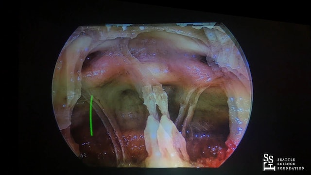 3-D Endoscopic Skull Base Anatomy- The Sagittal Plane I & II