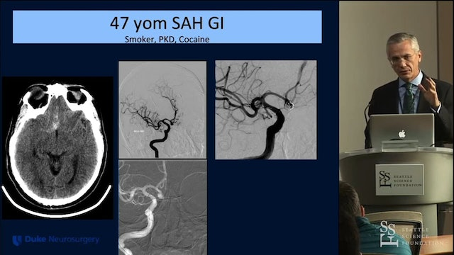 Balloon Assisted Coil embolization