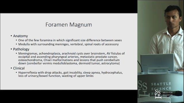 Cranial Nerve Foramina - Anatomy of P...