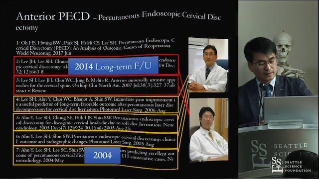 Posterior Endoscopic Cervical Procedures