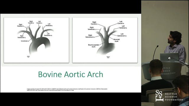 Double Aortic Arch and Arterial Acces...