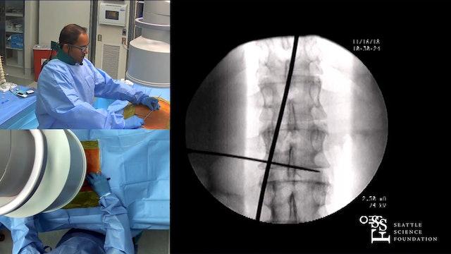 Lumbar Spinal Cord Stimulation Trial