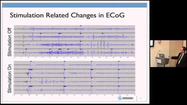 Responsive Neurostimulation for Epilepsy
