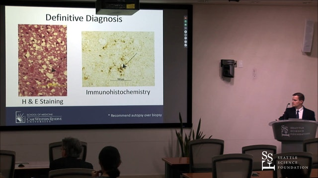 Creutzfeldt-Jakob Disease and Other Prion Diseases
