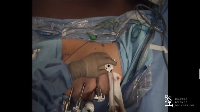 Robotic Nephroureterectomy with Retroperitoneal Lymph Node Dissection