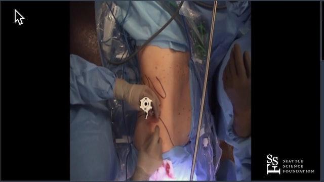 Retroperitoneal Robotic Partial Nephrectomy