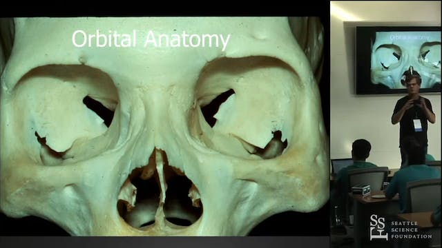 Craniotomy for Anterior Circulation a...