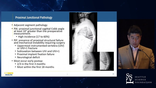 Adult Spinal Deformity Surgery: Complication Prevention
