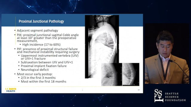 Adult Spinal Deformity Surgery: Compl...