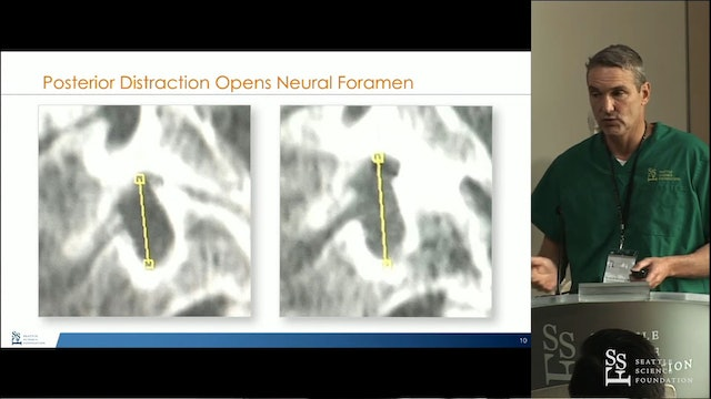 Posterior Cervical Fusion Cages