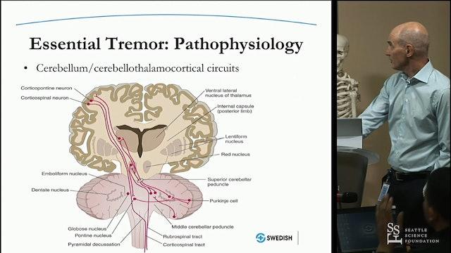 Functional Radiosurgery - Essential Tremor
