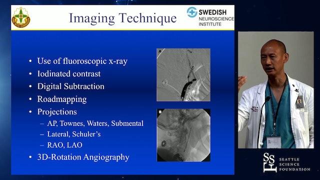 Angiographic Anatomy Review