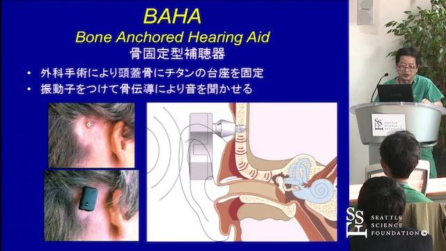 BAHA Surgery Using Linear Incision (JAPANESE)