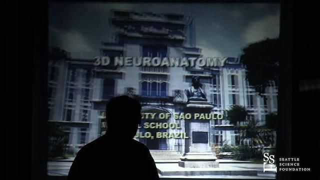 The Brain Surface - Sulci & Gyri