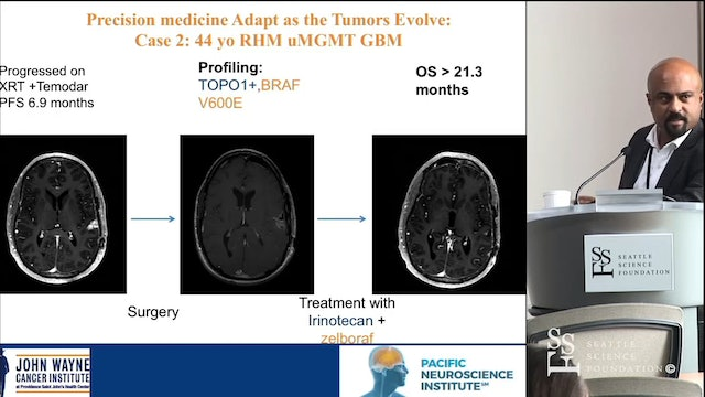 Precision Immunotherapy Approaches for Brain Cancers