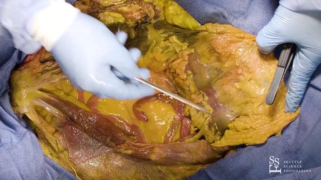 Abdominal Cavity Part I