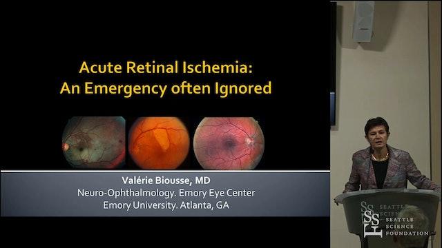 Acute Retinal Ischemia- An Emergency often Ignored