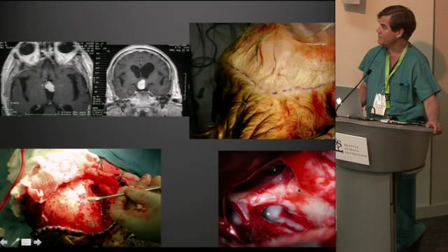 Surgical Approaches to the Third Vent...