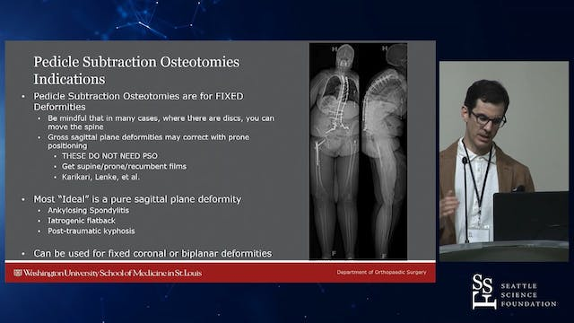 Osteotomies in Spinal Deformity