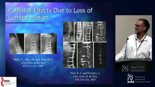 Limitations Due to Stiffness as a Collateral Impact of Lumbar Spinal Fusion