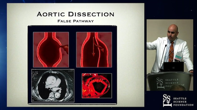 Aortic Dissection: From Syndromes to Surpises