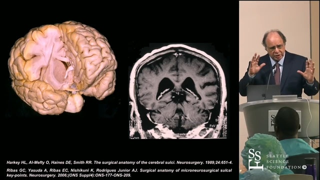 Anatomy Guided Microneurosurgery for the Removal of Lobar Gliomas