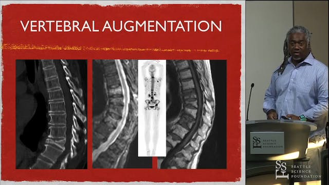 Vertebral Augmentation