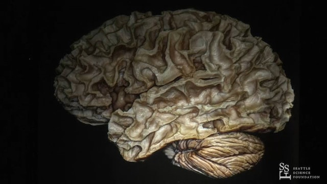 Approaches to the Central Core of the Brain