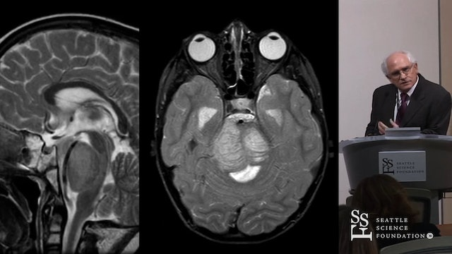 Brain Stem Glioma - Therapeutic Strategies For An Incurable Cancer