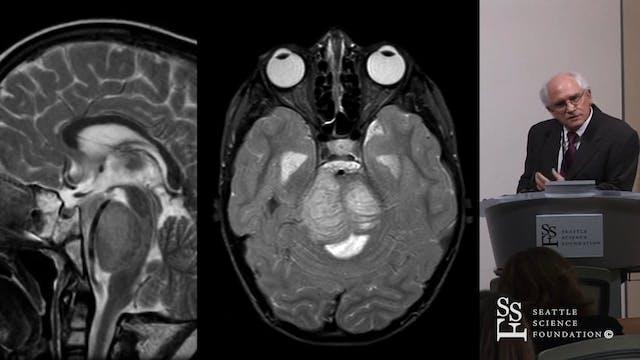 Brain Stem Glioma - Therapeutic Strat...