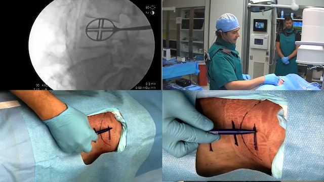 Anterior Column Reconstruction (ACR)