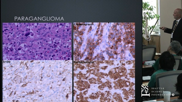 Tumors of the Temporal Bone & Skull Base