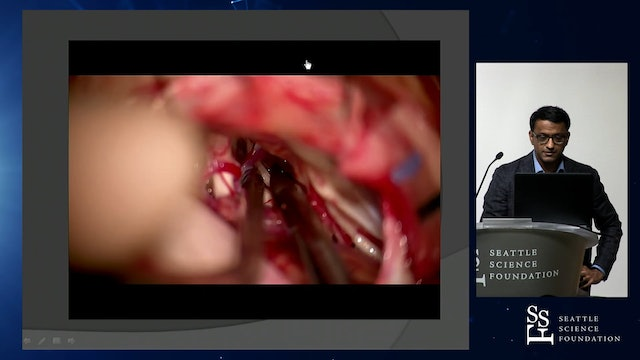 Case Discussions: Nuances in Aneurysm Clip Management